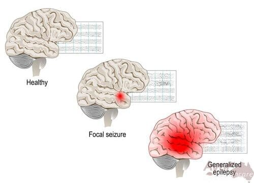 Did You Know That There are Many Types of Epilepsy?
